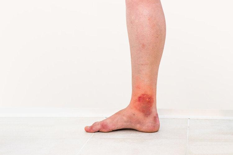 被传说中的蜱虫咬是什么感觉?做错这一步,可能惹上5种疾病
