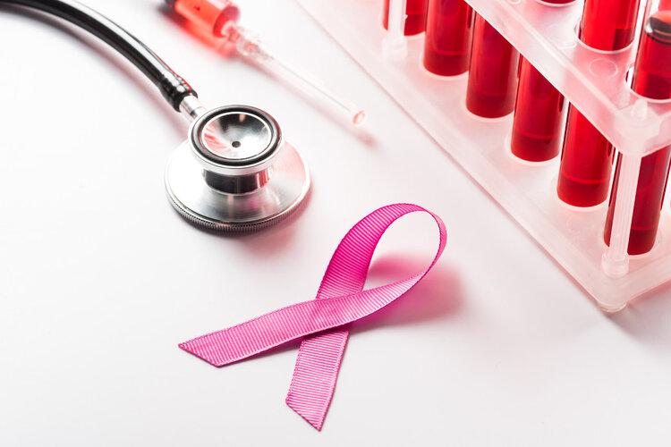 三阴性乳腺癌:令人闻风丧胆的肿瘤!3种新疗法或将提高生存率